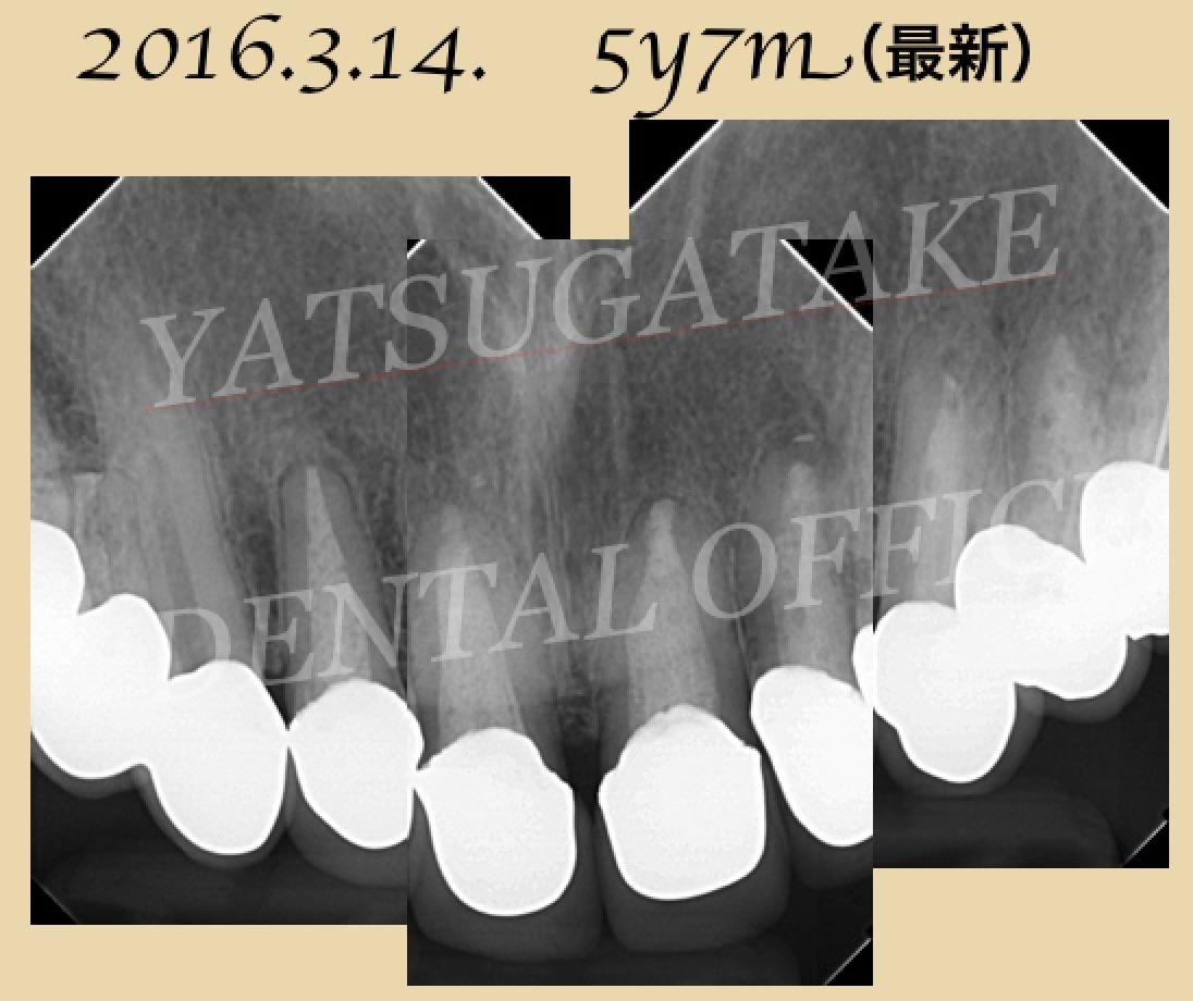 KeynoteScreenSnapz016_1.jpg